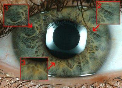 imágen del iris con puntos suceptibles de ser escaneados